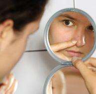 Se débarasser de l'acné avec des solutions naturelles