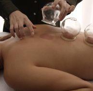 """""""Cupping"""" thérapie : tout savoir sur la thérapie par les ventouses"""