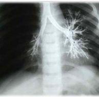 Qu'est-ce qu'une bronchographie ?