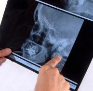 Radioscopie aux rayons X