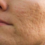 tr/traitement-cicatrice-acne.jpg