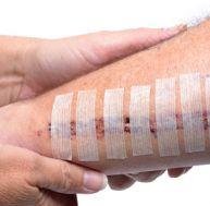 tr/traitement-cicatrices-solutions.jpg