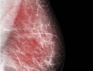 Aperçu d'une mammographie. A noter que le cancer du sein tue chaque année en France environ 12 000 femmes