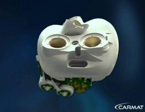 Le troisième patient ayant reçu un coeur artificiel Carmat a été autorisé à rentrer chez lui - copyright Carmat