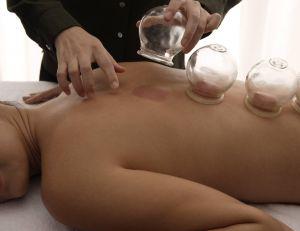 Découvrez la cupping thérapie