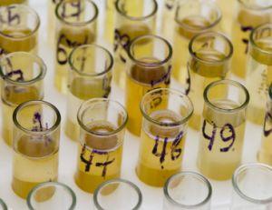 Examen d'urine