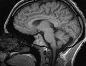 L'imagerie à résonance magnétique ou IRM