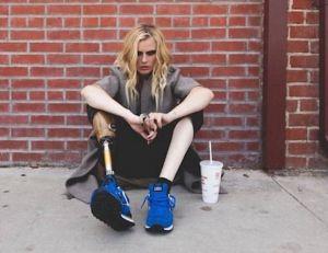 Lauren Wasser a été amputée d'une jambe à la suite d'un choc toxique - copyright Instagram de Lauren Wasser