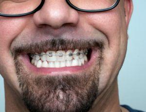 L'orthodontie pour les adultes