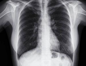 Cancer du poumon : un nouvel outil préventif