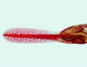 Mise en évidence de la spatule de la spatule grâce au procédé de l'alizarine