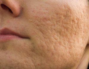 Comment traité les cicatrices d'acné ?