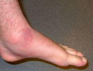 Morsure de vipère sur un pied adulte