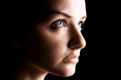 Le régime pour la peau problématique de la personne les rappels