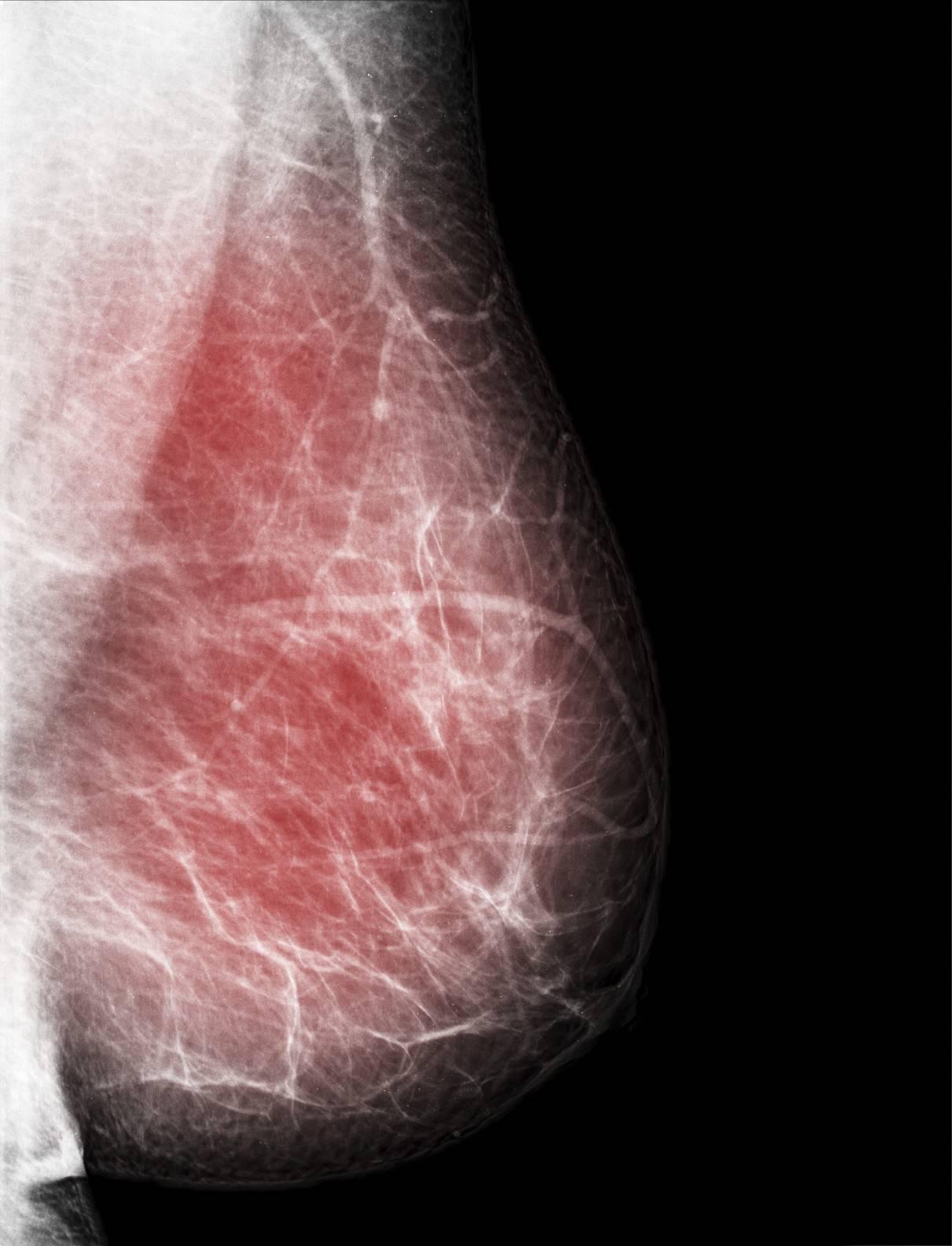 Cancer secondaire os : mtastase osseuse - Ooreka