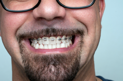 orthodontie cela fonctionne aussi pour les adultes. Black Bedroom Furniture Sets. Home Design Ideas